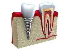 Имплантация зубов в стоматологии Дент Мастер г. Омск