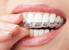 Исправление прикуса в Омске в стоматологии Дент Мастер