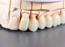 Протезирование зубов в стоматологии Дент Мастер в Омске